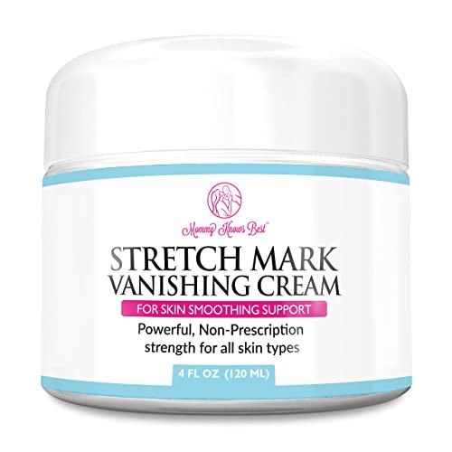 Mommy Knows Best Stretch Mark Removal Vanishing Cream Remove